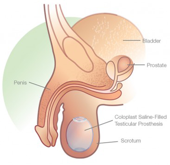 coloplast testicular prosthesis